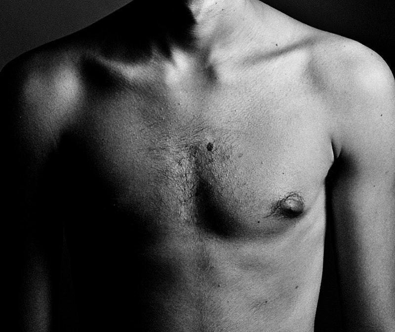 Resurfaçage cicatricielle - Dermo Laser Lyon