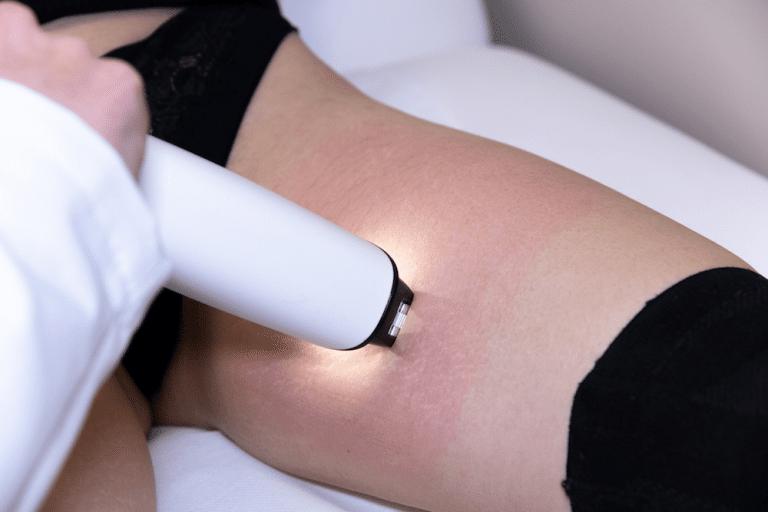 Comment traiter les vergetures - Dermo Laser Lyon