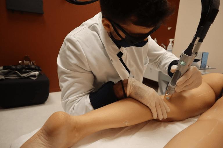 Combien de séances pour une épilation laser - Dermo Laser Lyon